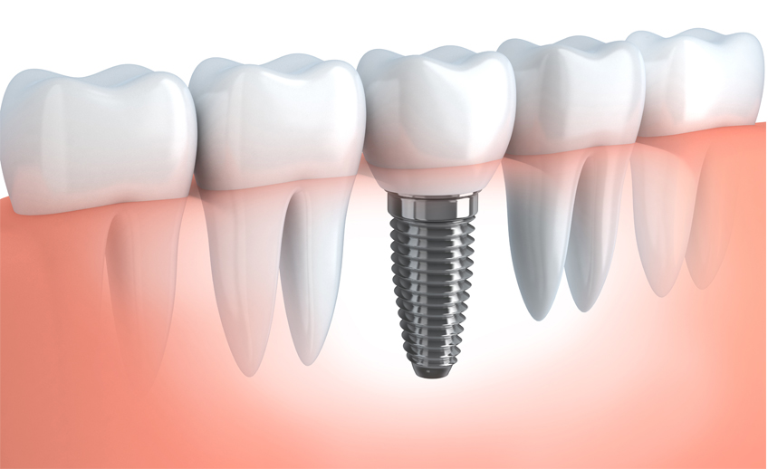 lebanese-dental-clinic-bahrain-invent-its-implant-01
